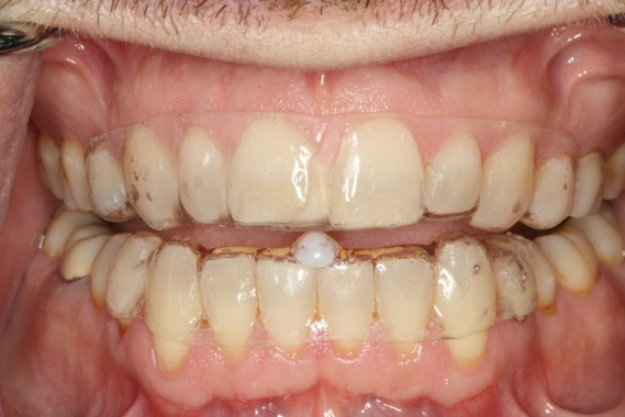 What Is Occlusal Splint Therapy Louisa Comprehensive Dental